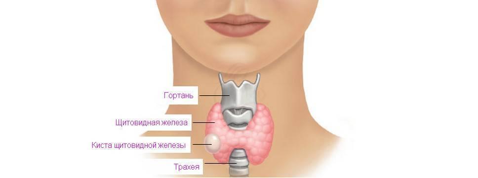 почему образуются узлы в щитовидной железе