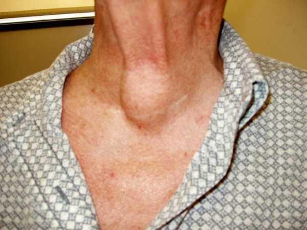 Узел на щитовидке норма