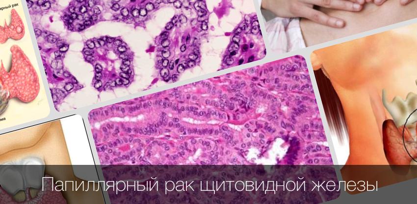 Симптомы и лечение рака щитовидной железы