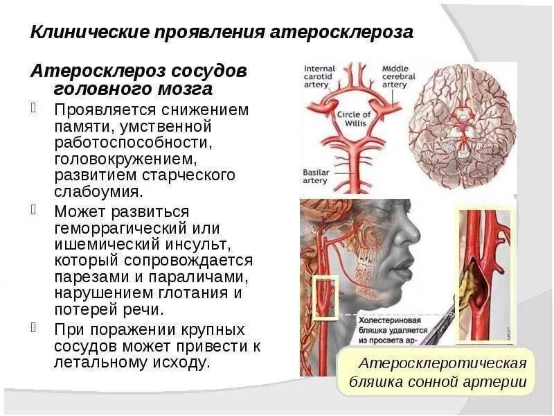 Симптомы и лечение церебрального атеросклероза