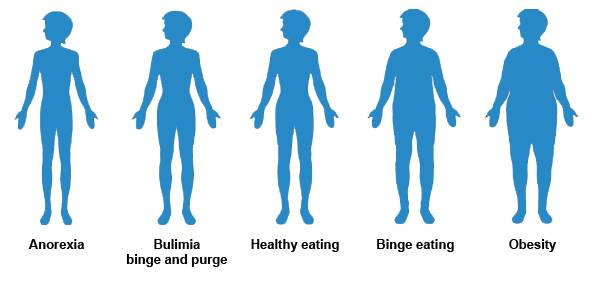 признаки анорексии у девушек тест
