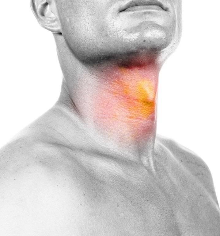 Жжение в горле: причины неприятных ощущений в гортани