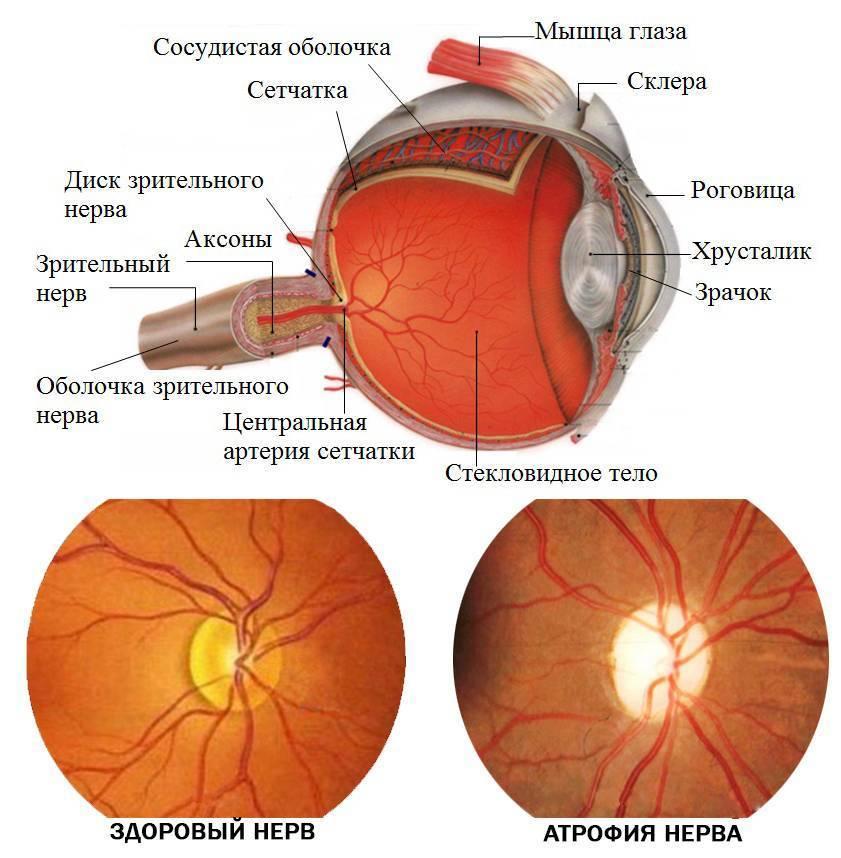 как вылечить атрофию зрительного нерва