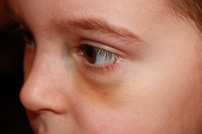кровоподтек под глазом