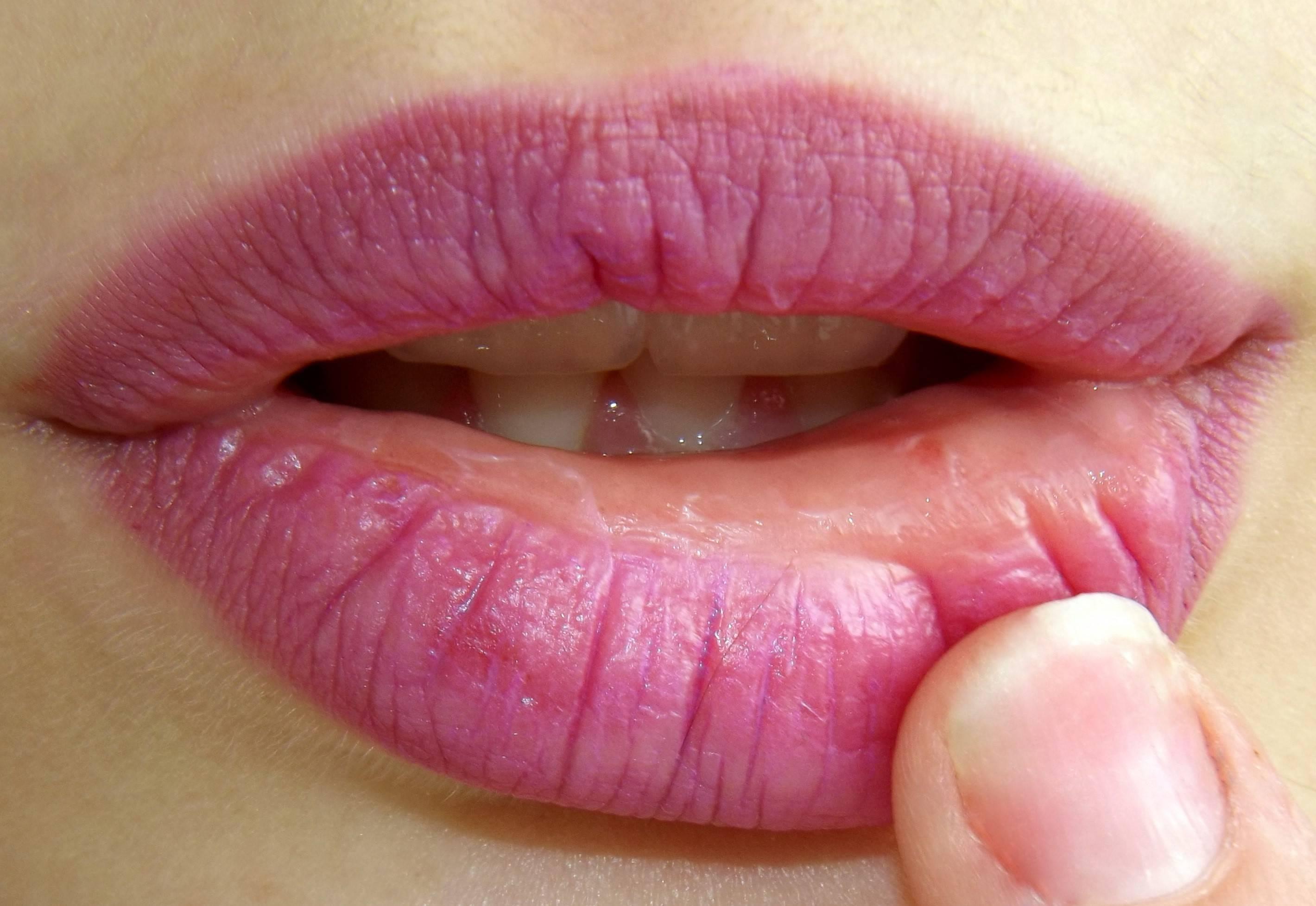 Причины возникновения герпеса на губах, чем опасен