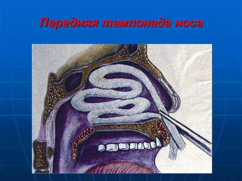 Владимир тимофеевич пальчун. лор-болезни: учиться на чужих ошибках