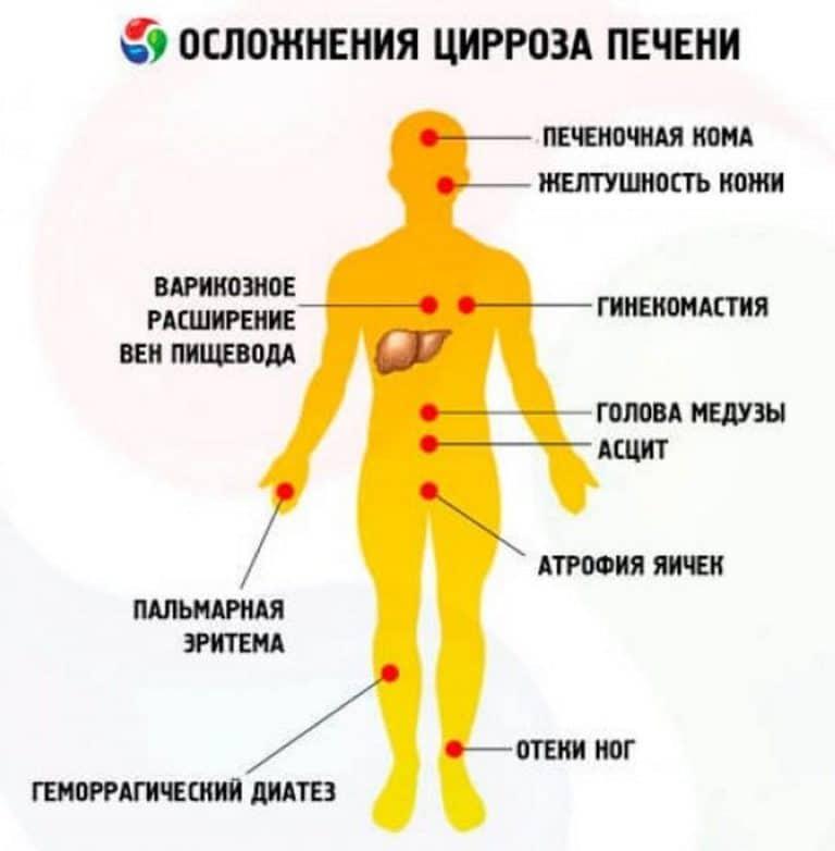 Как проявляется цирроз печени
