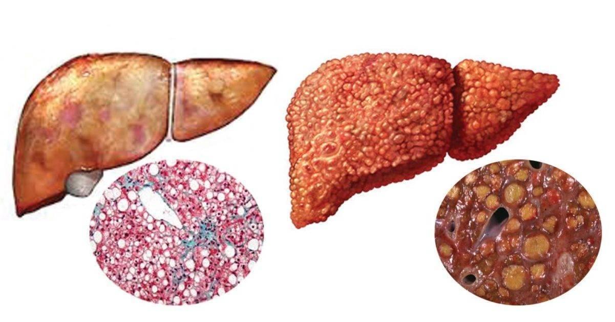 Вирусный гепатит с: симптомы. как передается болезнь: 5 путей для инфекции