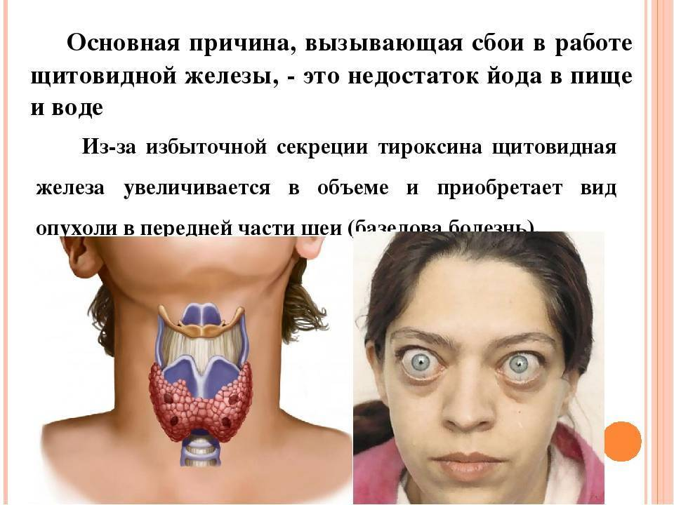 повышение гормонов щитовидной железы