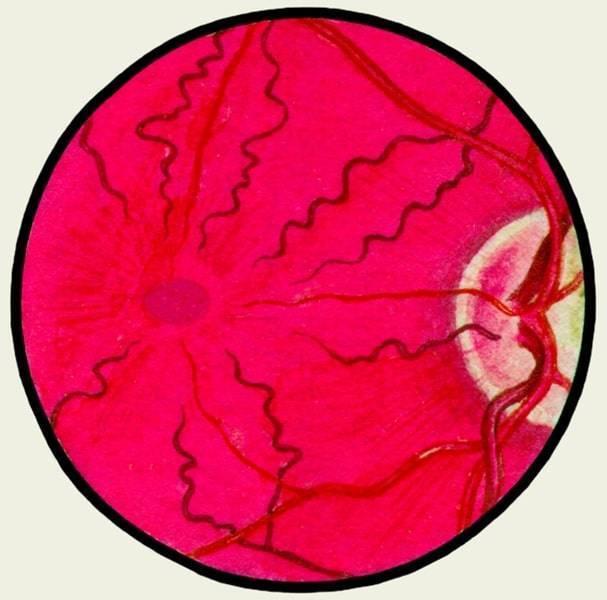 Ангиопатия сетчатки глаза у ребенка: причины, симптомы и лечение. детский офтальмолог
