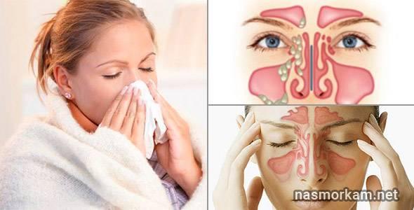 сгустки крови из носа при высмаркивании