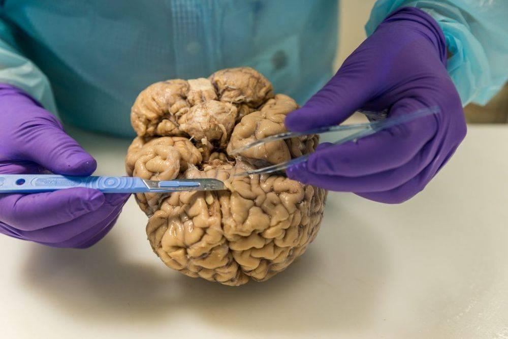 черви в мозгу