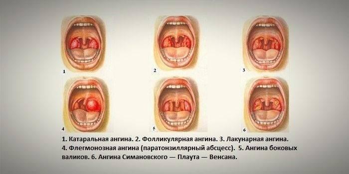 Отличие лакунарной ангины от фолликулярной