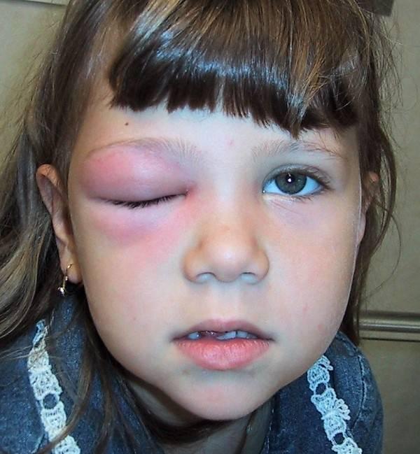 у ребенка опухло нижнее веко у одного глаза
