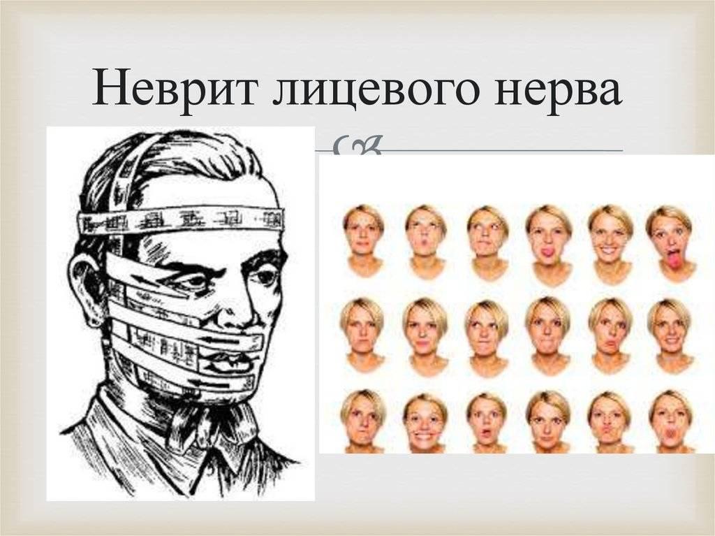Неврит лицевого нерва: опасен своими последствиями