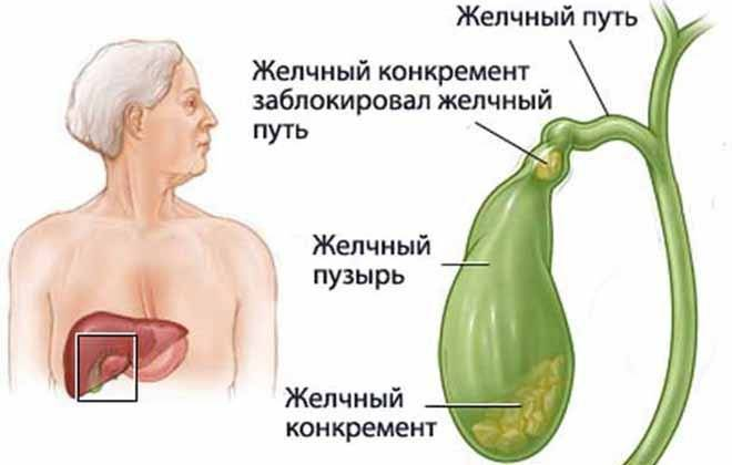 Как лечить воспаление желчного пузыря?