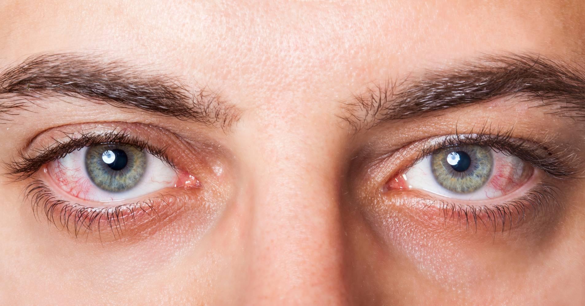 как снять красноту глаз в домашних условиях