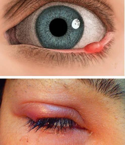 Отвечает офтальмолог: заразен ли ячмень на глазу для окружающих