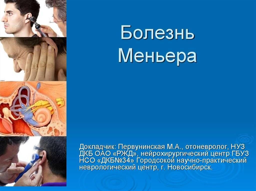 Синдром меньера: развитие, симптомы, лечение, прогноз