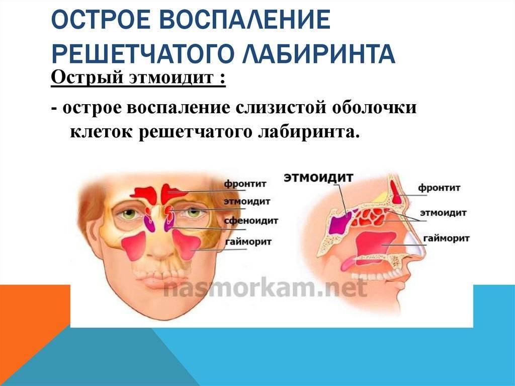 Лечение катарального этмоидита