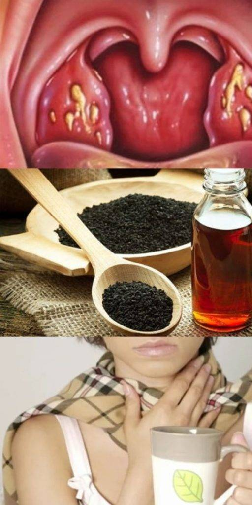 как облегчить боль в горле