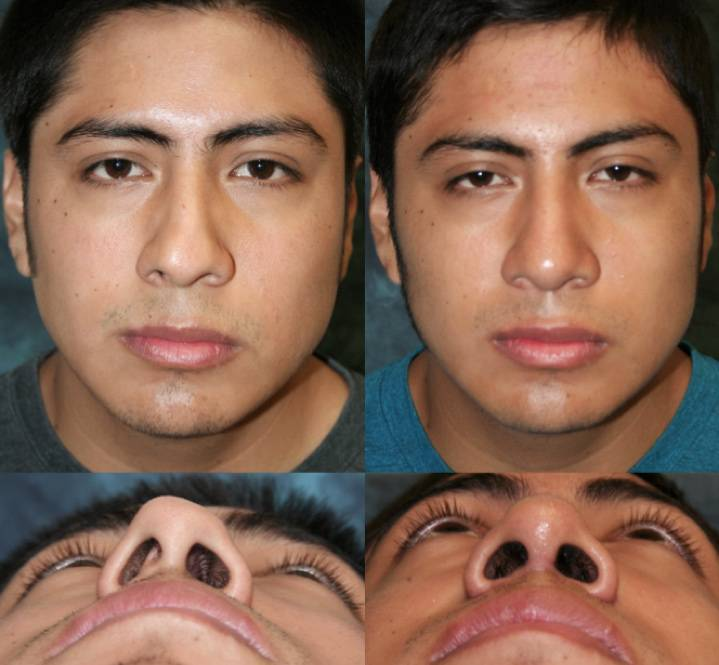 сломан нос симптомы