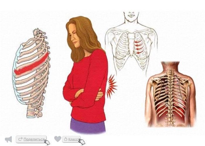 грудная невралгия симптомы лечение
