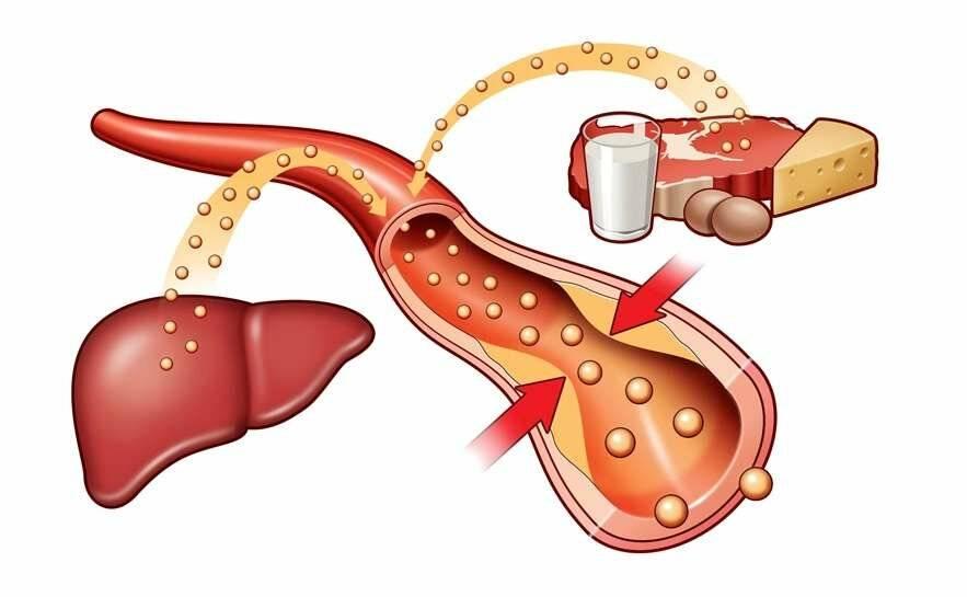 Анализ крови на холестерин — как правильно подготовиться