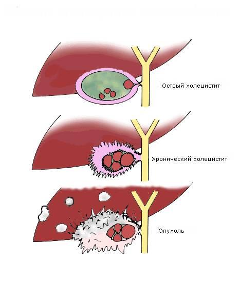 осложнения острого холецистита