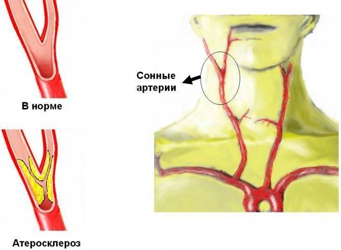 Лечение холестериновых бляшек в сосудах