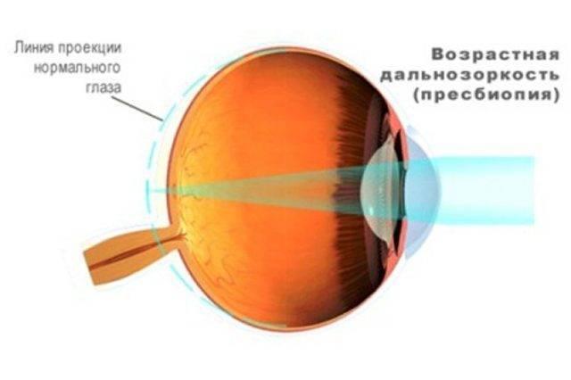 пресбиопия глаз что это