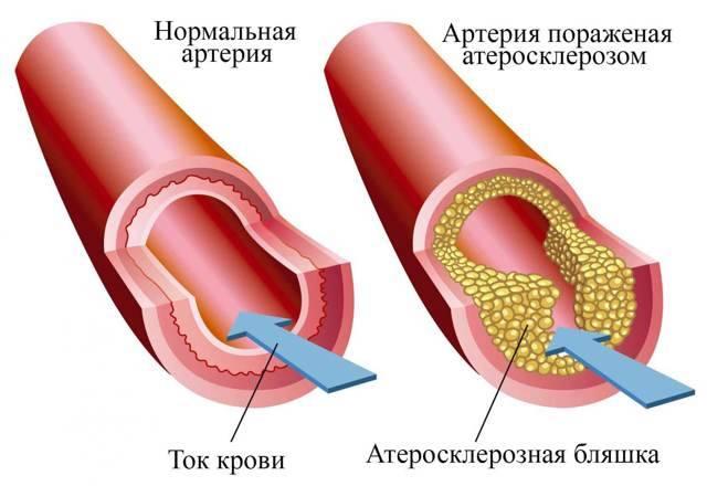 чем лечить атеросклероз аорты