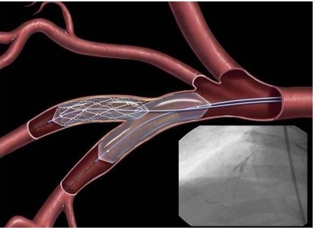 Виды операций для удаления холестериновых бляшек из сосудов