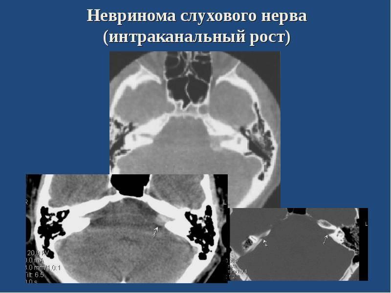 Невринома слухового нерва (вестибулярная шваннома)