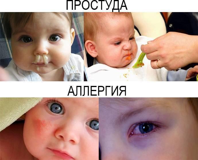 Как отличить аллергический насморк от обычного: типичные симптомы аллергического и простудного насморка