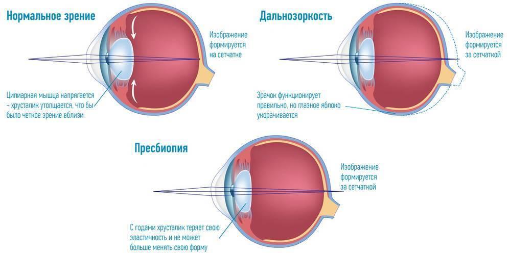 что такое пресбиопия глаз