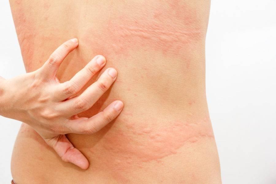 дерматит с зудом лечение