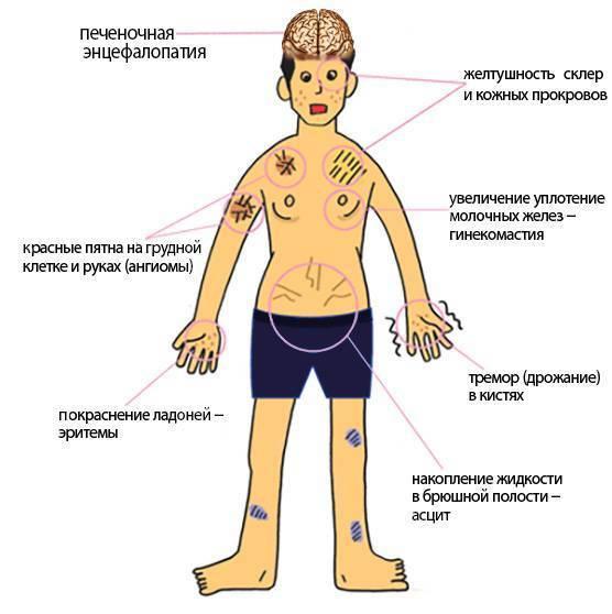Печёночная кома: причины заболевания, основные симптомы, лечение и профилактика