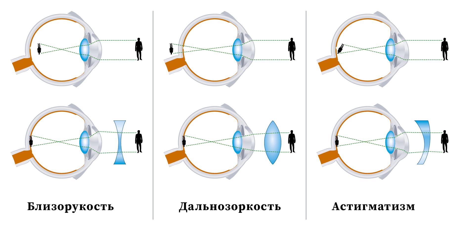 Какие линзы нужны для коррекции дальнозоркости?