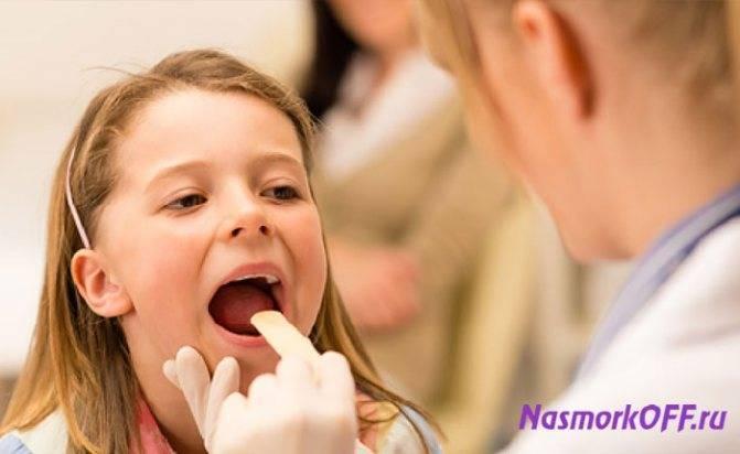 что такое ринофарингит у детей