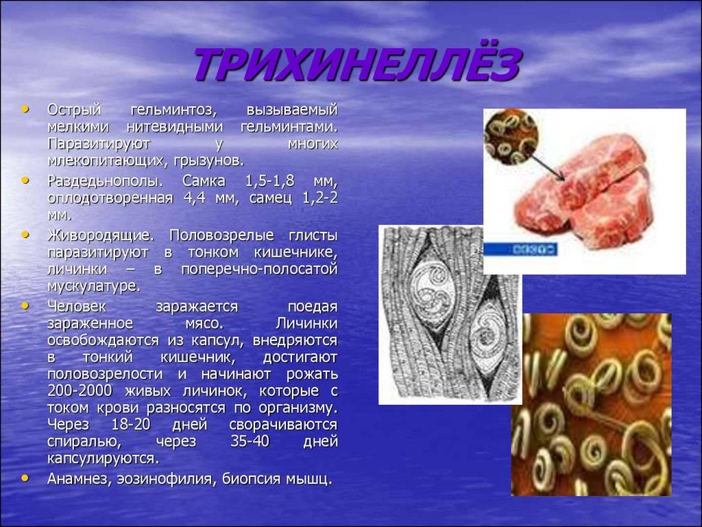 Трихинеллез - диагностика, симптомы, лечение заболевания
