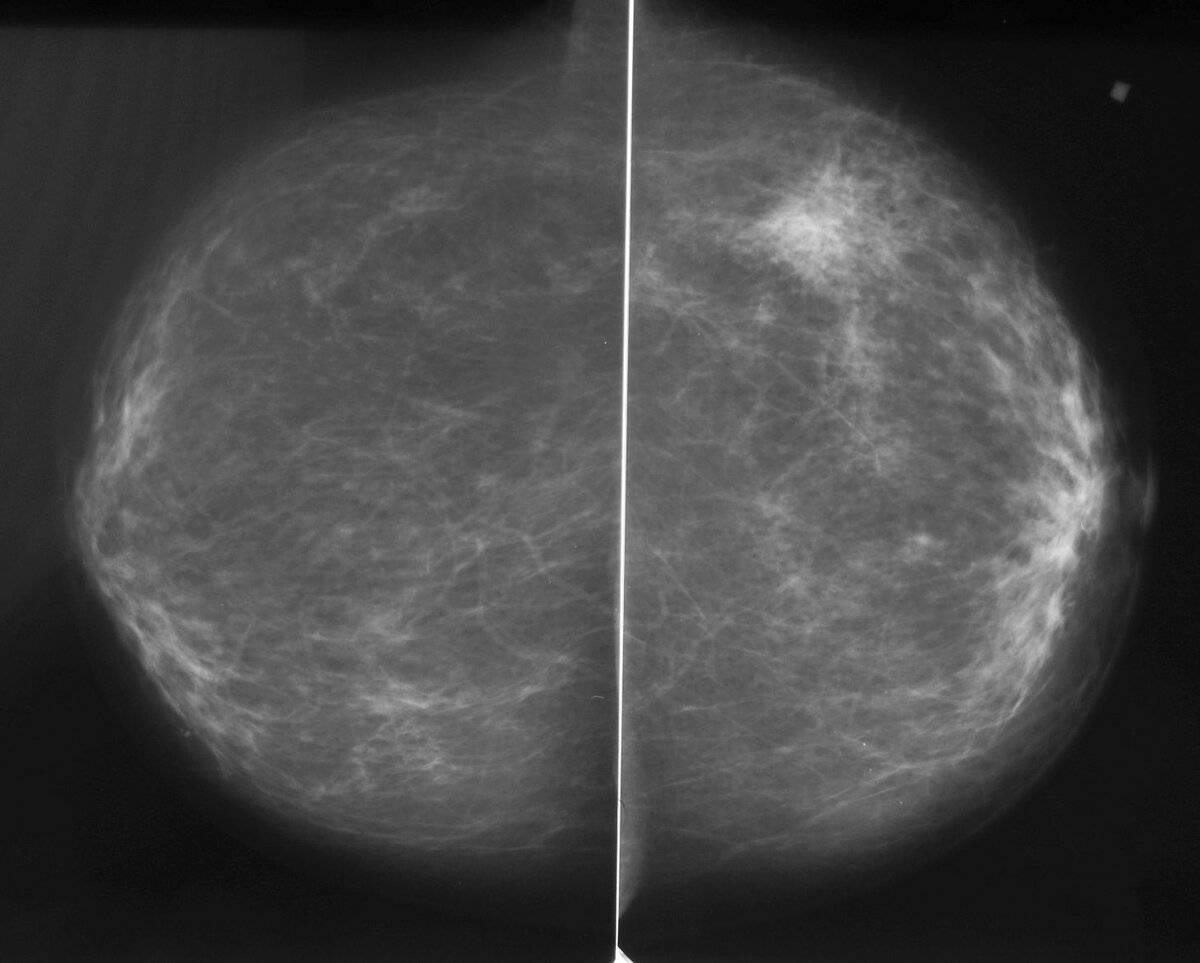 Симптомы заболеваний, диагностика, коррекция и лечение молочных желез — molzheleza.ru. маммография молочных желез: что такое, как делают, подготовка и результаты