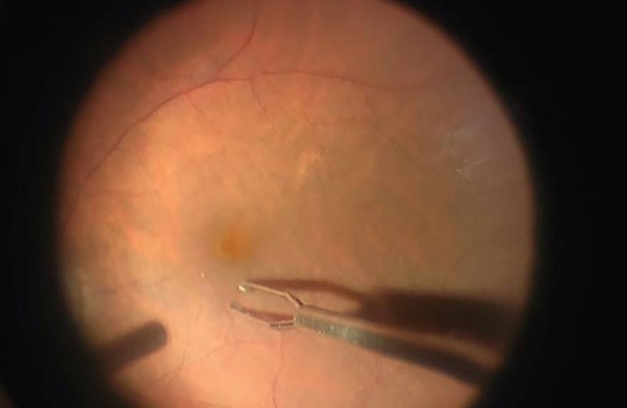 Чем обусловлен макулярный разрыв сетчатки глаза: все о симптомах и лечении патологии