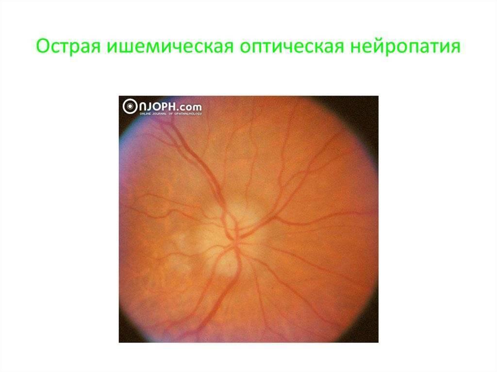 Ишемическая оптическая нейропатия передняя — википедия. что такое ишемическая оптическая нейропатия передняя