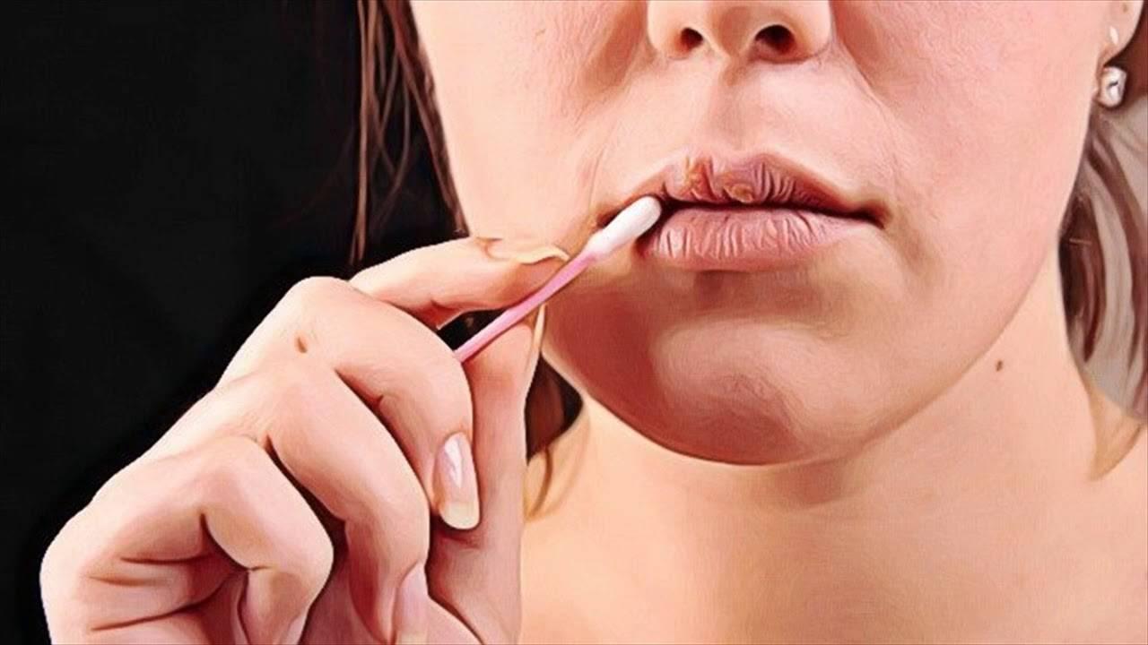 как вылечить малярию на губах
