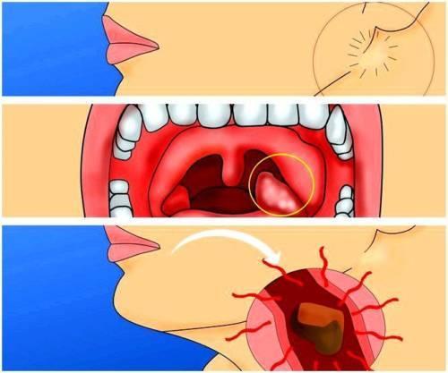 Воспаление лимфоузлов на шее при ангине