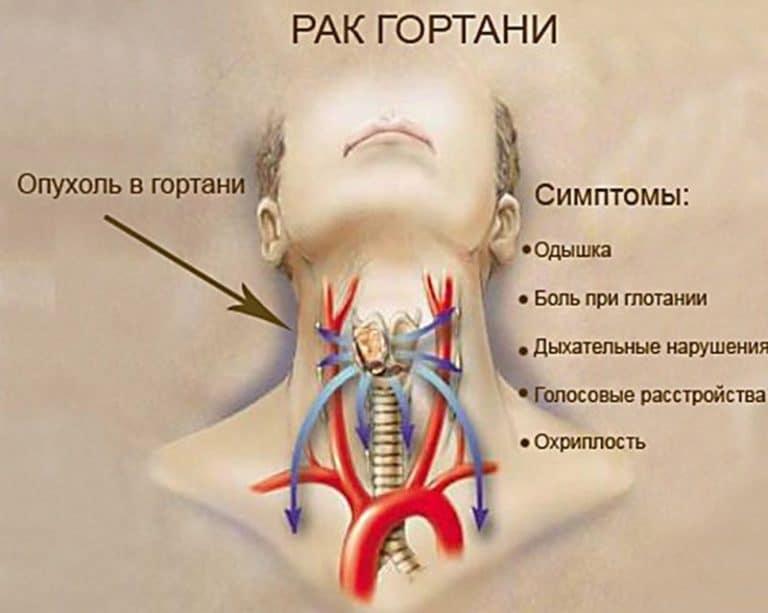 Болит горло трахея