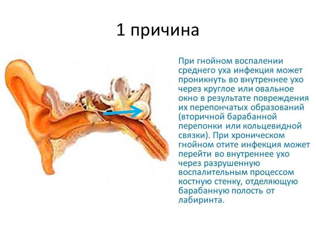 Лабиринтит