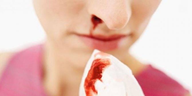 Как вызвать кровотечение из носа быстро и безопасно