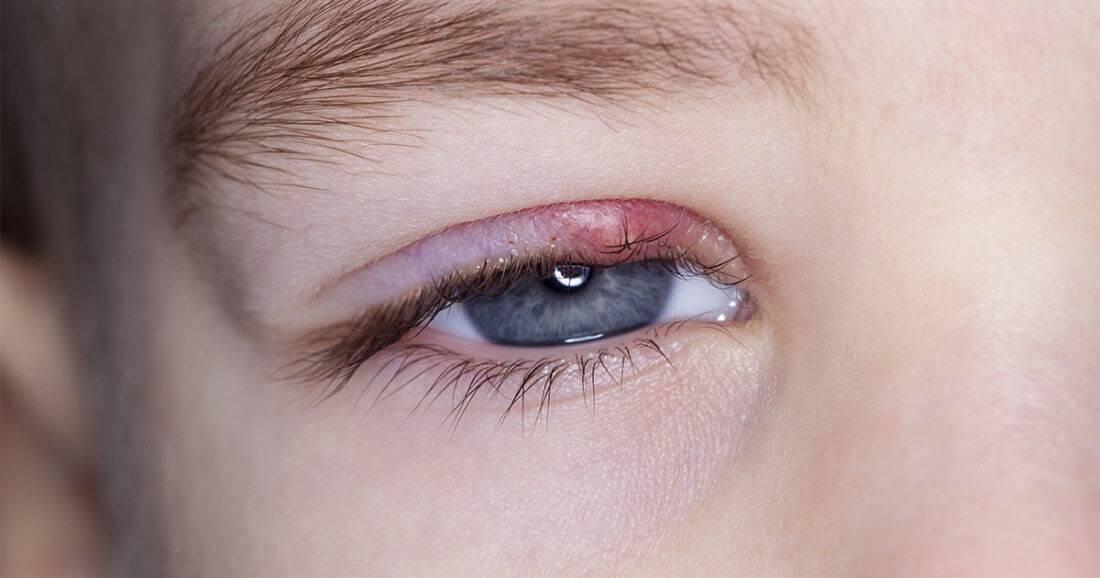 как предотвратить появление ячменя на глазу на начальной стадии